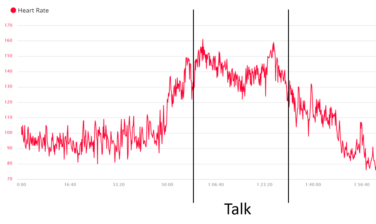 Heart rate going nuts at XP Days